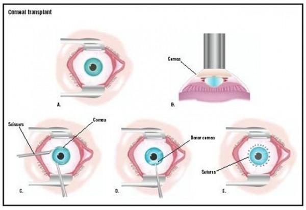 Corneal Transplantation / Penetrating Keratoplasty